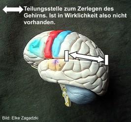 Gehirnmodell mit Teilungsstelle